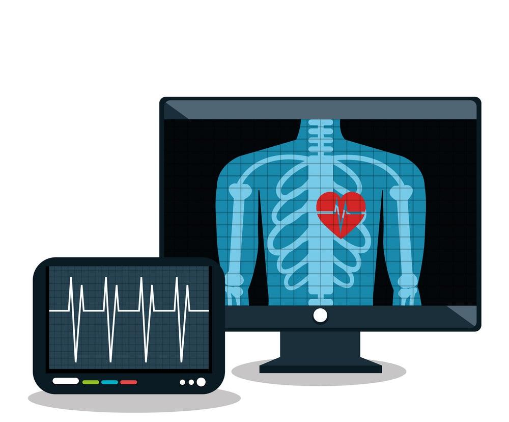 نرم افزار مدیریت رادیولوژی ، سونوگرافی، رادیوگرافی، MRI و CT-SCAN